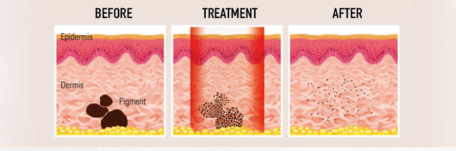 Laser-Tattoff treatment