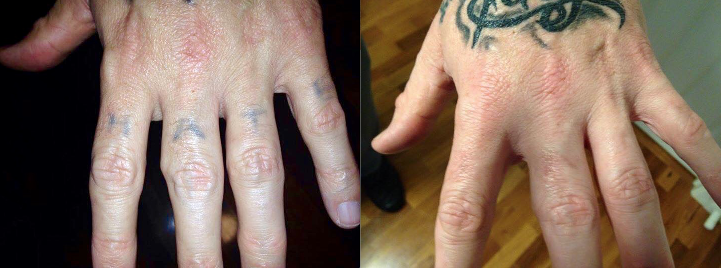 Ink removal of a hand tattoo after only one treatment using our pico laser