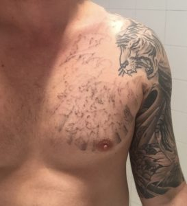 After laser tattoo removal treatment of a chest tattoo