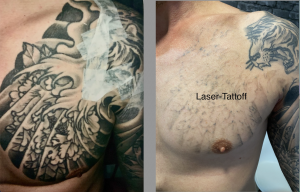 Progress picture using pico laser at our campbelltown clinic